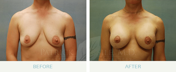 Breast lift with augmentation Before and After